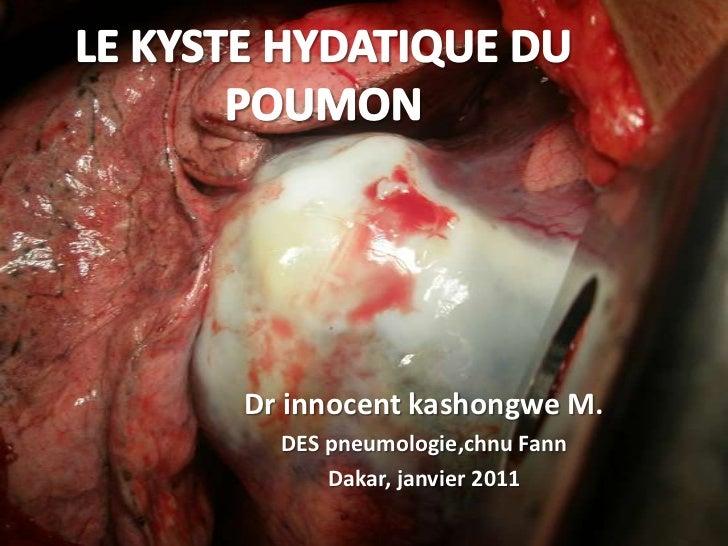 Dr innocent kashongwe M.  DES pneumologie,chnu Fann      Dakar, janvier 2011
