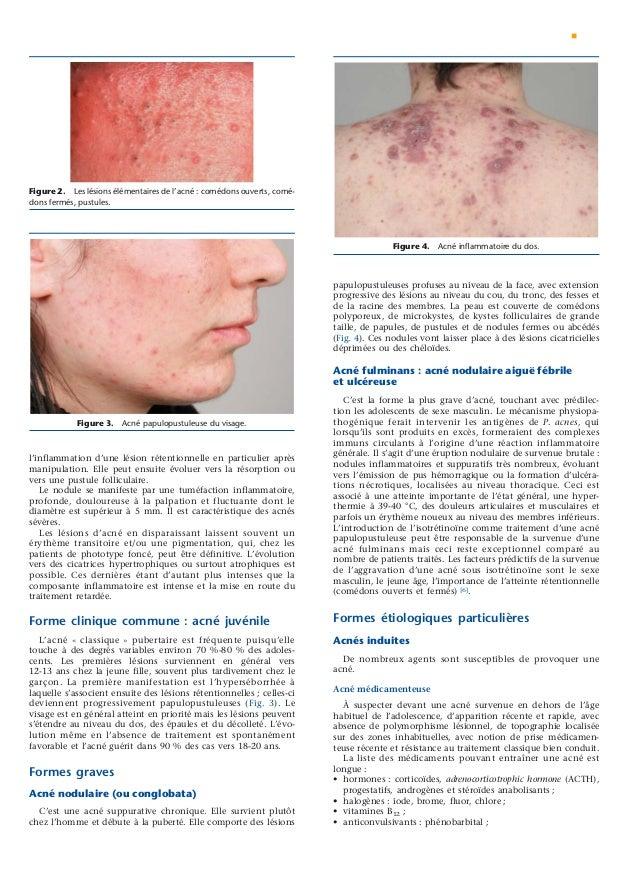 En ligne datant de l'acné