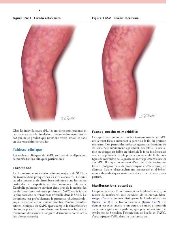 Le manuel du g n raliste 2 maladies syst miques - Quel sont les symptome d une fausse couche ...