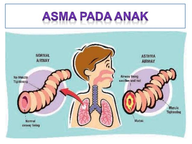 • Asma merupakan penyakit radang kronis saluran napas yang tidak bisa disembuhkan, bersifat hilang dan kemudian timbul lag...