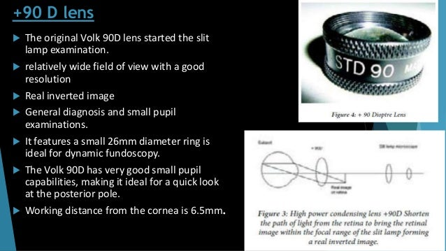 +90 D lens  The original Volk 90D lens started the slit lamp examination.  relatively wide field of view with a good res...