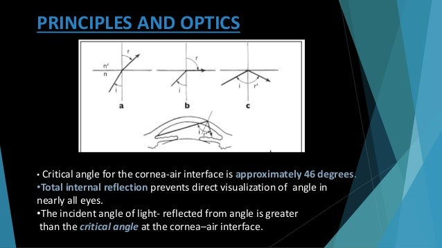 L i < L r light rays are refracted at the contact lens-air interface light rays are reflected by a mirror light rays leave...