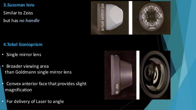 GONIOLENSES Koeppe lens  Prototype diagnostic lens  Available in several sizes  Most commonly used lens for diagnostic ...
