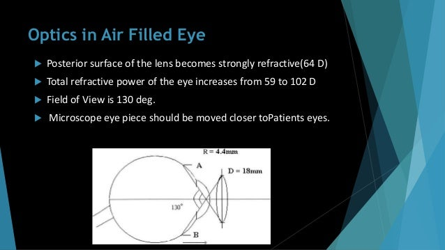 High index corneal contact lenses  Form essential part of image capturing unit  Allow capturing of oblique rays emerging...
