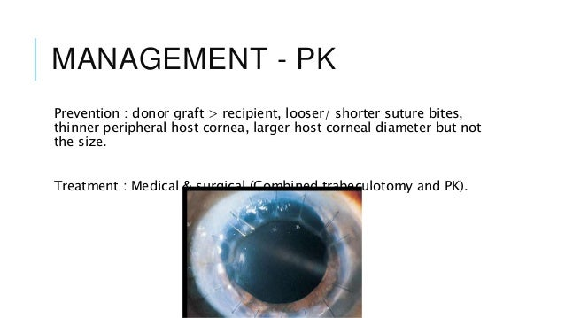 steroid induced glaucoma avraham cohen