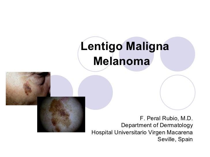 Lentigo maligna melanoma Lentigo Maligna Melanoma Foot