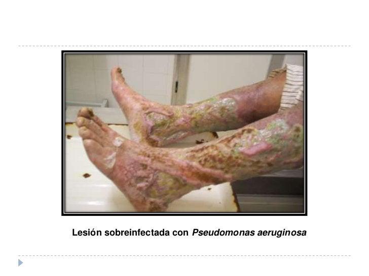 Se debe realizar en todos los casos que se estudienpor primera vez, y consiste en obtener una biopsia depiel de una lesión...