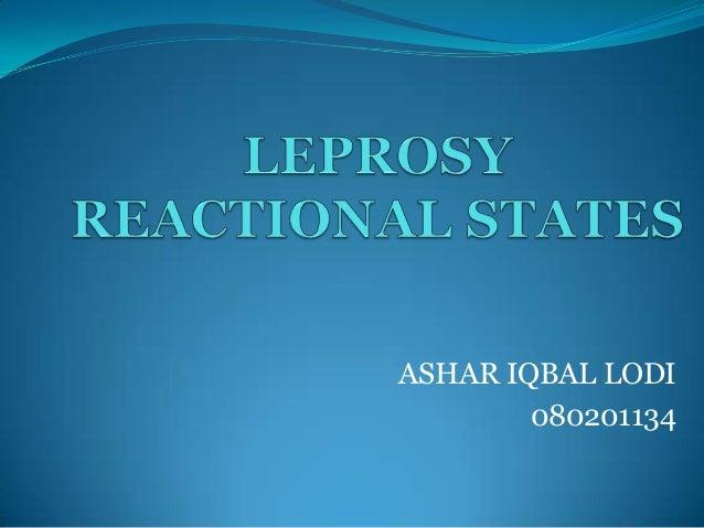ASHAR IQBAL LODI        080201134