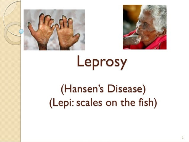 Leprosy (Hansen's Disease) (Lepi: scales on the fish) 1