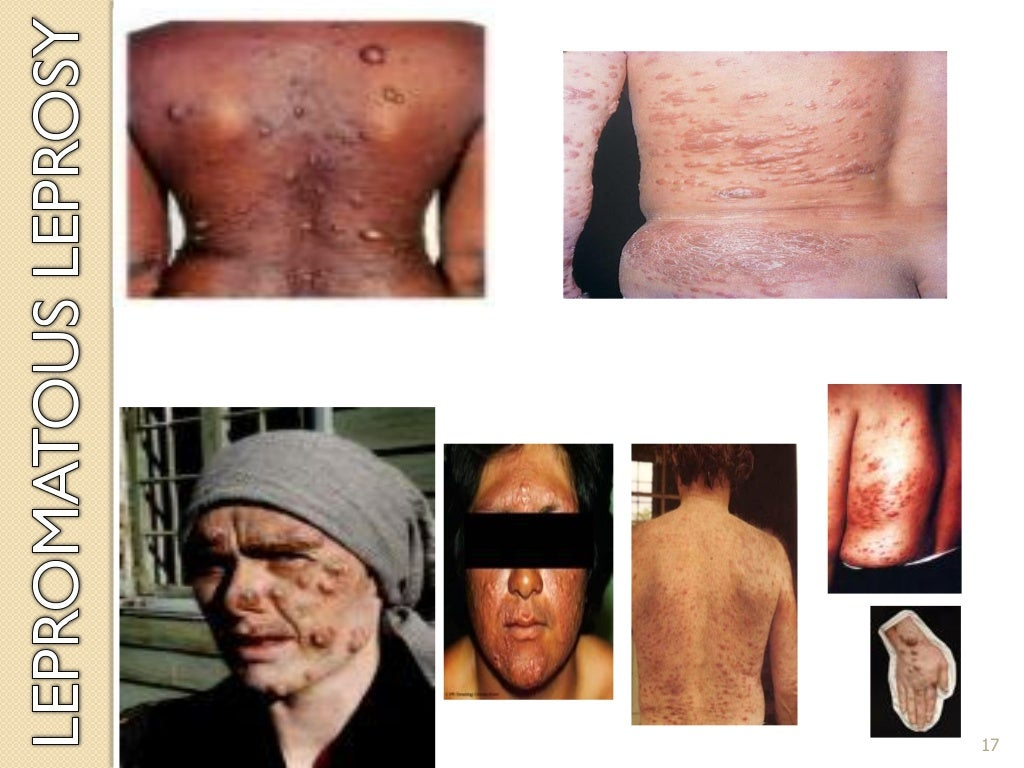 Pathophysiology of Leprosy page 17