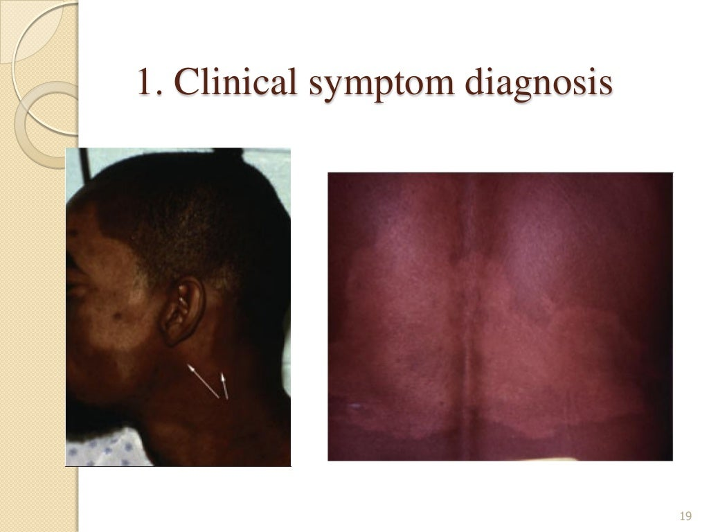 Pathophysiology of Leprosy page 19