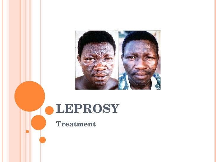 LEPROSY Treatment