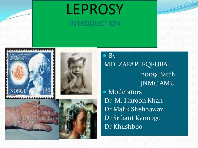 LEPROSY INTRODUCTION  By MD ZAFAR EQEUBAL 2009 Batch JNMC,AMU  Moderators Dr M. Haroon Khan Dr Malik Shehnawaz Dr Srikan...