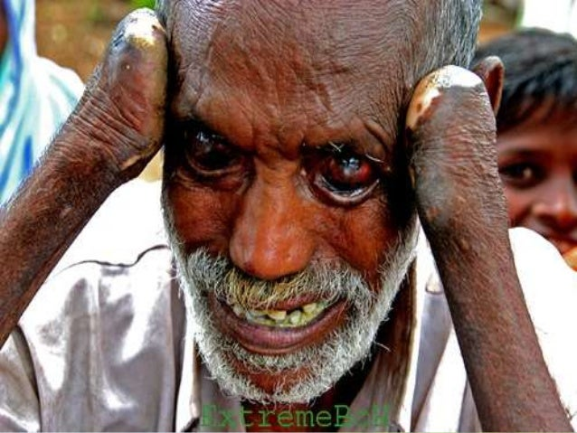 the characteristics of leprosy a chronic infectious disease Characteristics of leprosy  patients with this chronic infectious disease are classified as having paucibacillary hansen's disease (tuberculoid leprosy),.