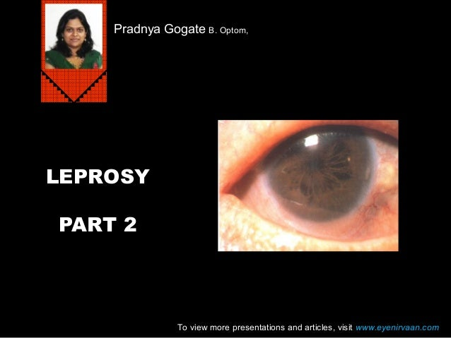 Pradnya Gogate B. Optom,  LEPROSY PART 2  To view more presentations and articles, visit www.eyenirvaan.com