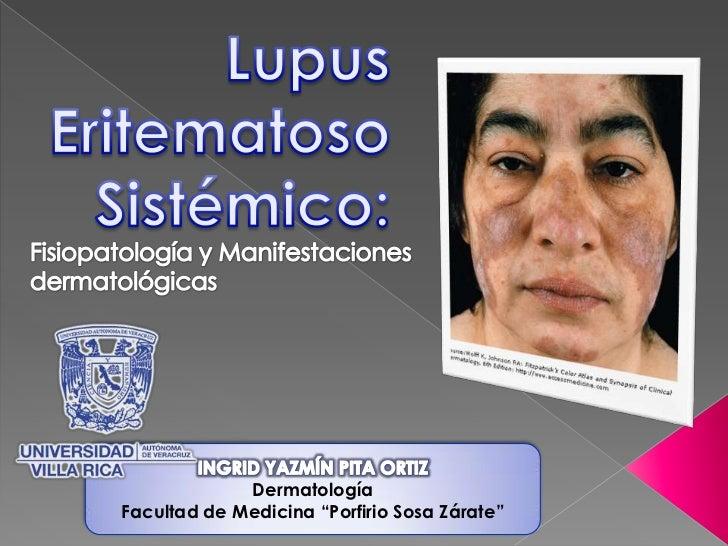 Lupus Eritematoso Sistémico:<br />Fisiopatología y Manifestaciones dermatológicas<br />INGRID YAZMÍN PITA ORTIZ<br />Derma...