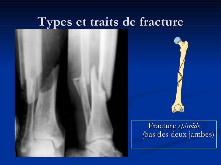 types of fractures What are the different types of hip fracture a fracture is a partial or complete break in a bone there can be either a single break or multiple breaks in a bone a hip fracture is.