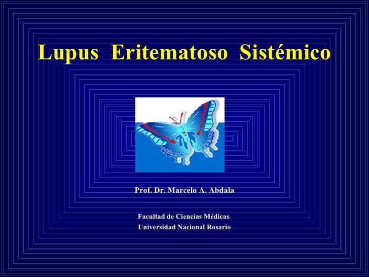 Lupus  Eritematoso  Sistémico Prof. Dr. Marcelo A. Abdala Facultad de Ciencias Médicas  Universidad Nacional Rosario