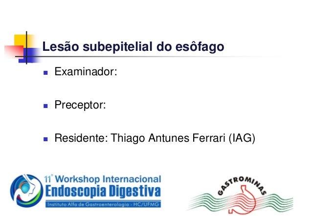 Lesão subepitelial do esôfago Examinador: Preceptor: Residente: Thiago Antunes Ferrari (IAG)