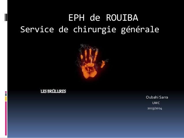 EPH de ROUIBA  Service de chirurgie générale  LES BRÛLURES  Oubahi Sarra  UMC  2013/2014