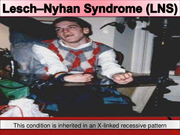 a paper on lesch nyhan disease Medical research for lesch-nyhan syndrome including cure research, prevention research, diagnostic research, and basic research.