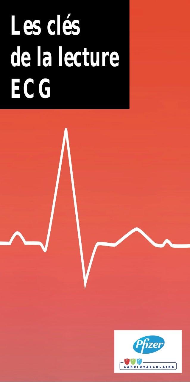 3. Troubles de conduction intra-ventriculaire : Hémiblocs. •Hémibloc antérieur gauche : déviation gauche de l'axe QRS au-d...