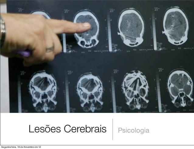 Lesões Cerebrais   PsicologiaSegunda-feira, 19 de Novembro de 12
