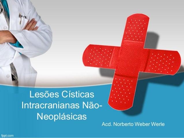 Lesões Císticas Intracranianas Não- Neoplásicas Acd. Norberto Weber Werle