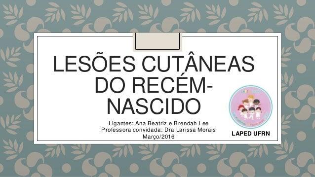 LESÕES CUTÂNEAS DO RECÉM- NASCIDO Ligantes: Ana Beatriz e Brendah Lee Professora convidada: Dra Larissa Morais Março/2016 ...