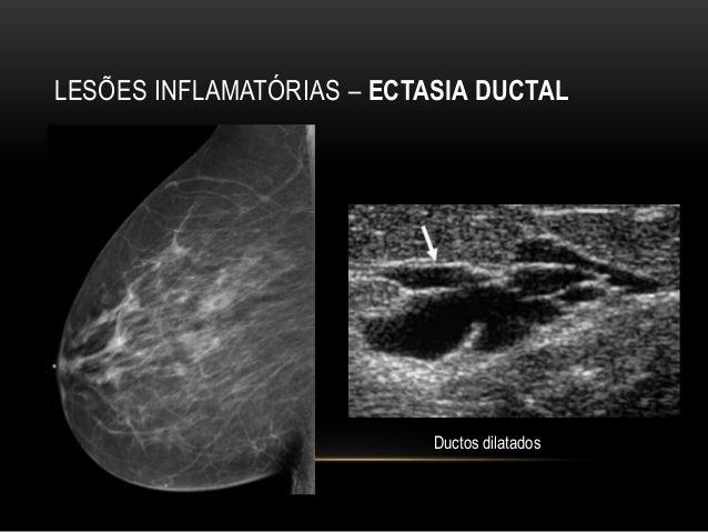 Papiloma intraductal