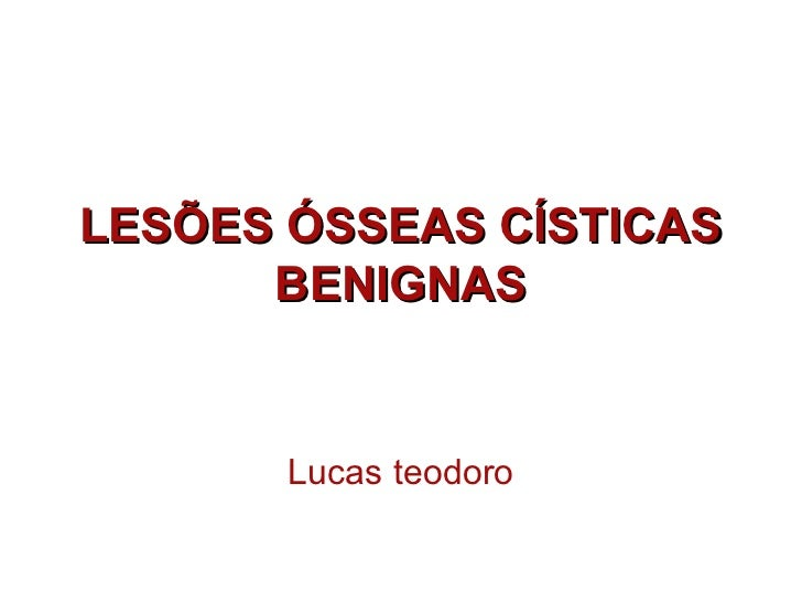 LESÕES ÓSSEAS CÍSTICAS      BENIGNAS       Lucas teodoro