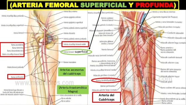 LESIÓN PARCIAL DE ARTERIA FEMORAL A NIVEL DEL TRIÁNGULO DE SCARPA