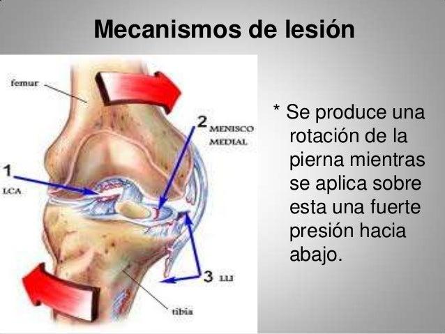 Lesión de ligamento cruzado anterior ( presentación )