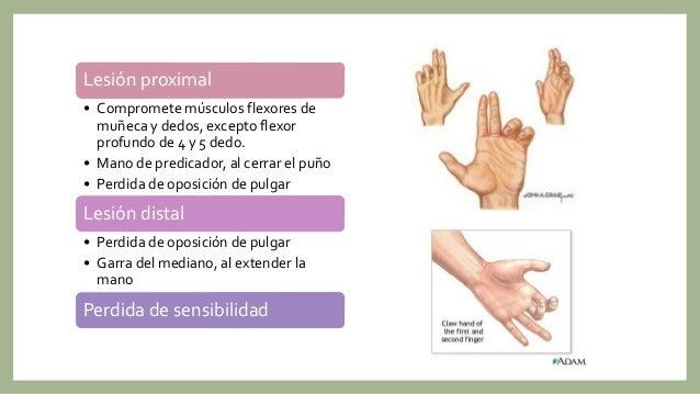 Lesión de nervios periféricos