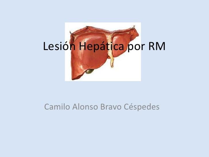 Lesión Hepática por RMCamilo Alonso Bravo Céspedes