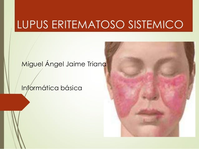 LUPUS ERITEMATOSO SISTEMICO  Miguel Ángel Jaime Triana  Informática básica
