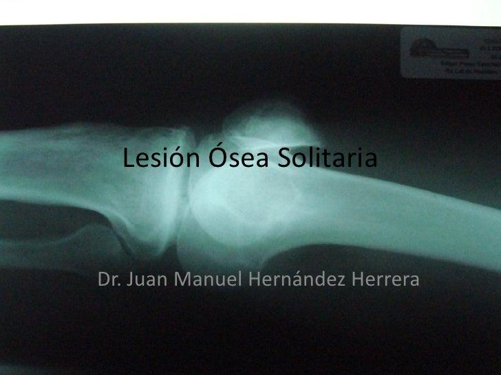 Lesión Ósea Solitaria   Dr. Juan Manuel Hernández Herrera
