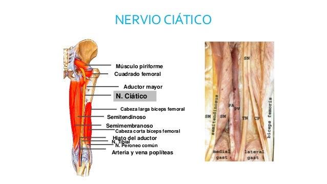 Lesion nervio ciatico