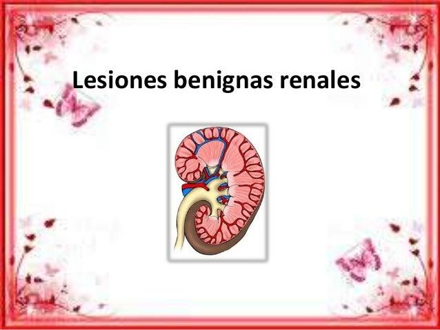 Lesiones benignas renales