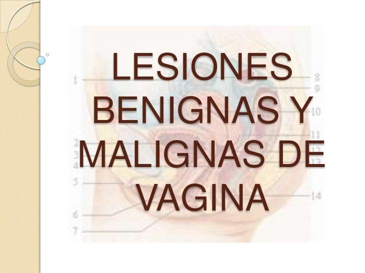 LESIONES BENIGNAS Y MALIGNAS DE VAGINA<br />