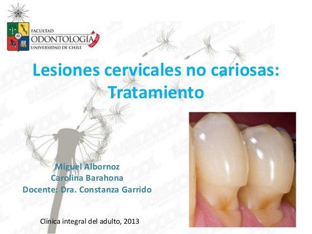 Lesiones cervicales no cariosas: Tratamiento Miguel Albornoz Carolina Barahona Docente: Dra. Constanza Garrido Clínica int...