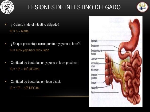 Lesiones de intestino delgado y manejo quirurgico
