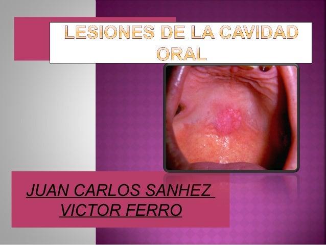 JUAN CARLOS SANHEZVICTOR FERRO