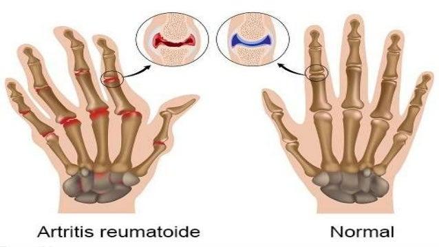 Lesiones de la cavidad oral enfermedades reumatol gicas - Alimentos para mejorar la artrosis ...