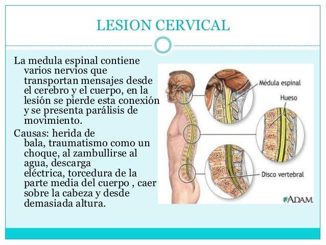 La osteocondrosis sheynogo del departamento de la columna vertebral 2 3 st