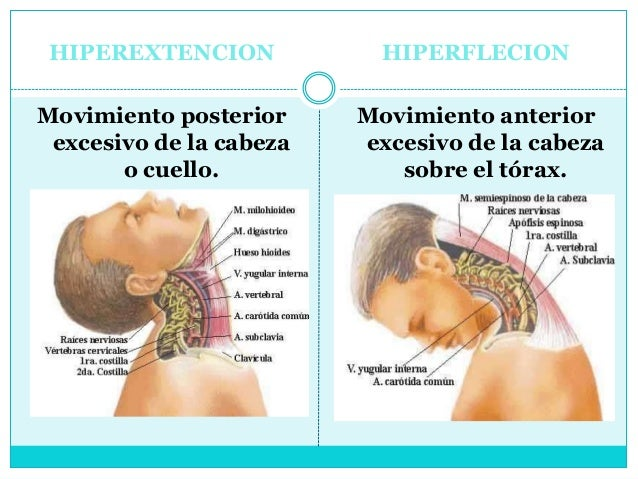 El tratamiento de la columna vertebral shmorlya