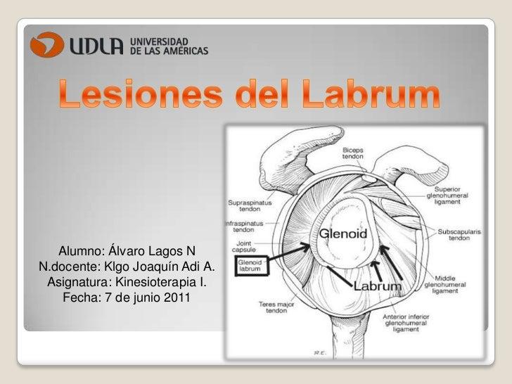 Lesiones del labrum y disyuncion 2011 Alvaro Lagos