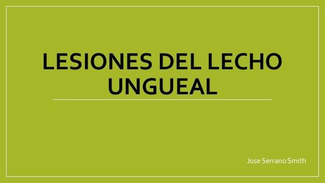 LESIONES DEL LECHO UNGUEAL Jose Serrano Smith