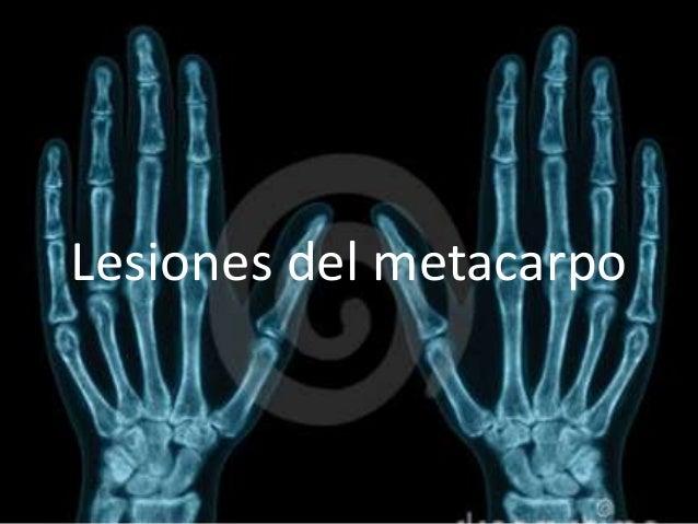 Lesiones del metacarpo