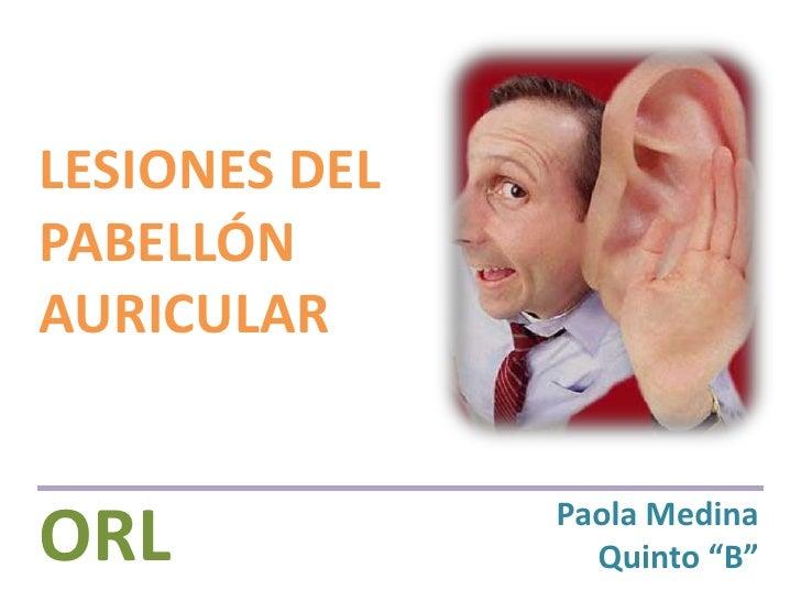 """LESIONES DEL PABELLÓN AURICULAR<br />ORL<br />Paola Medina<br />Quinto """"B""""<br />"""
